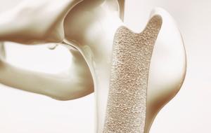 osteoporose - cuidados para os ossos